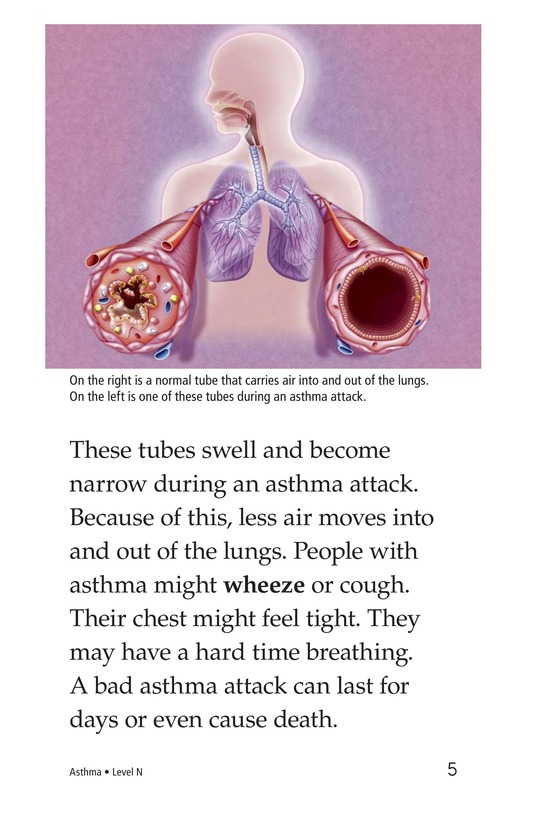Book Preview For Asthma Page 5